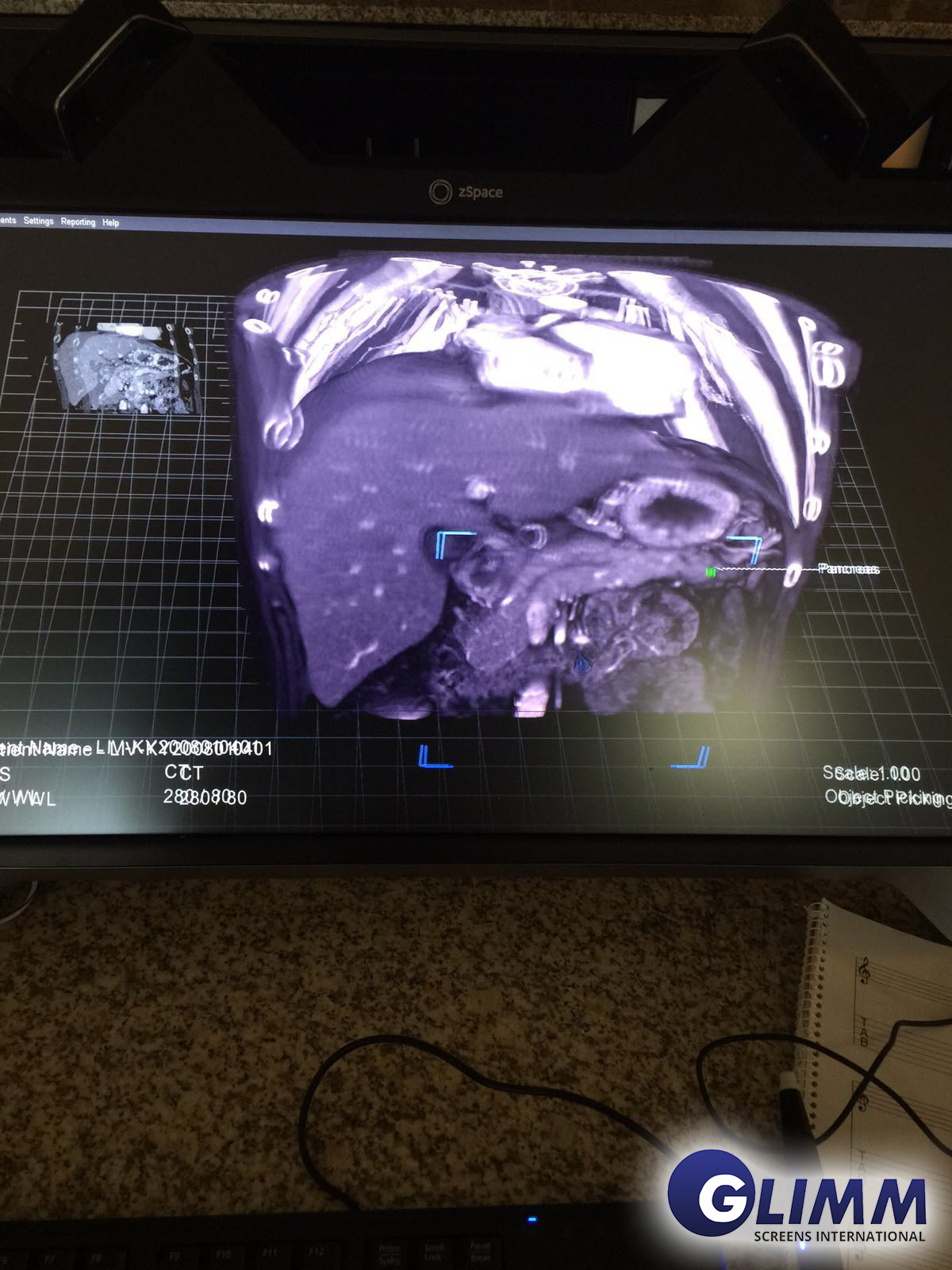 Medical scan with Hologram